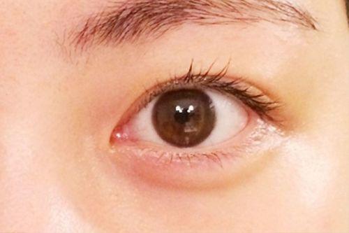 目の定期検査のすすめ   目についての健康情報   公 …